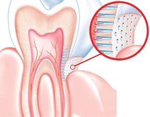 Причини і лікування підвищеної чутливості зубів