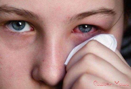 Кон`юнктивіт симптоми і лікування