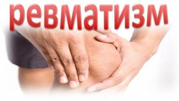 Симптоми і лікування ревматизму суглобів