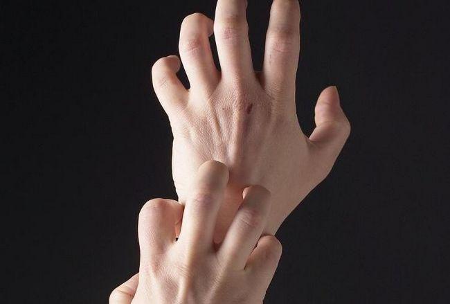 Суха екзема на руках: причини, симптоми, лікування